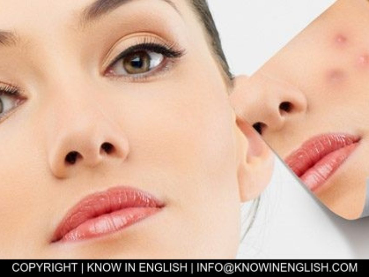 Treating Acne Naturally For Oily Skin Know In English